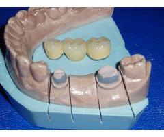 Prótesis dentales en Barquisimeto a excelentes precios